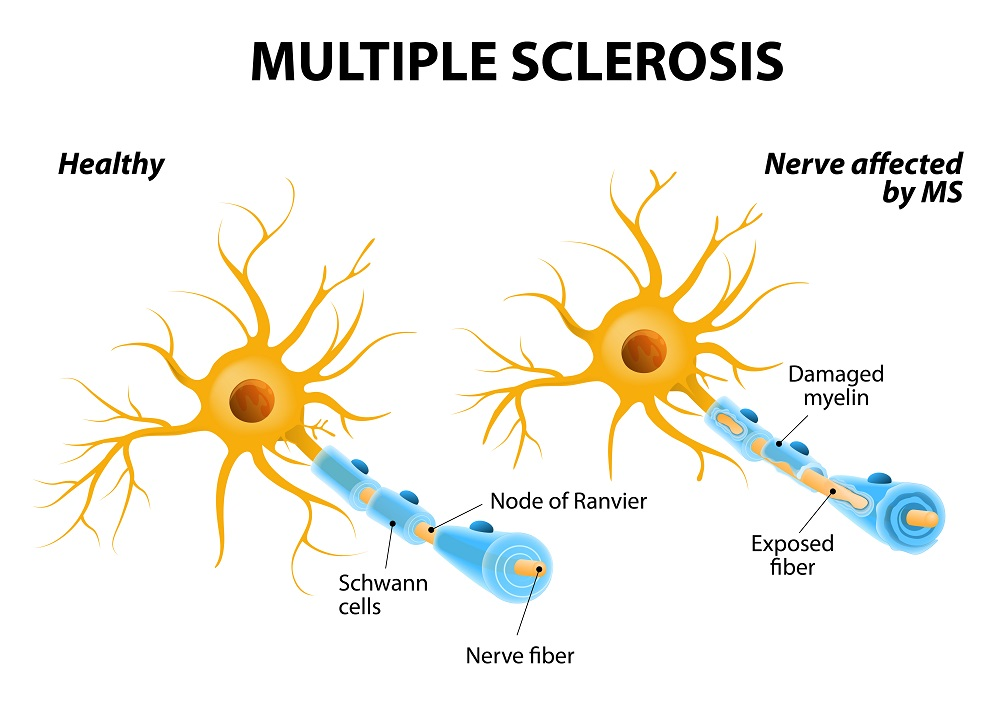 In patients with MS, the nerves of the brain and spinal cord are damaged by their own immune system, resulting in loss of muscle control, vision and balance.