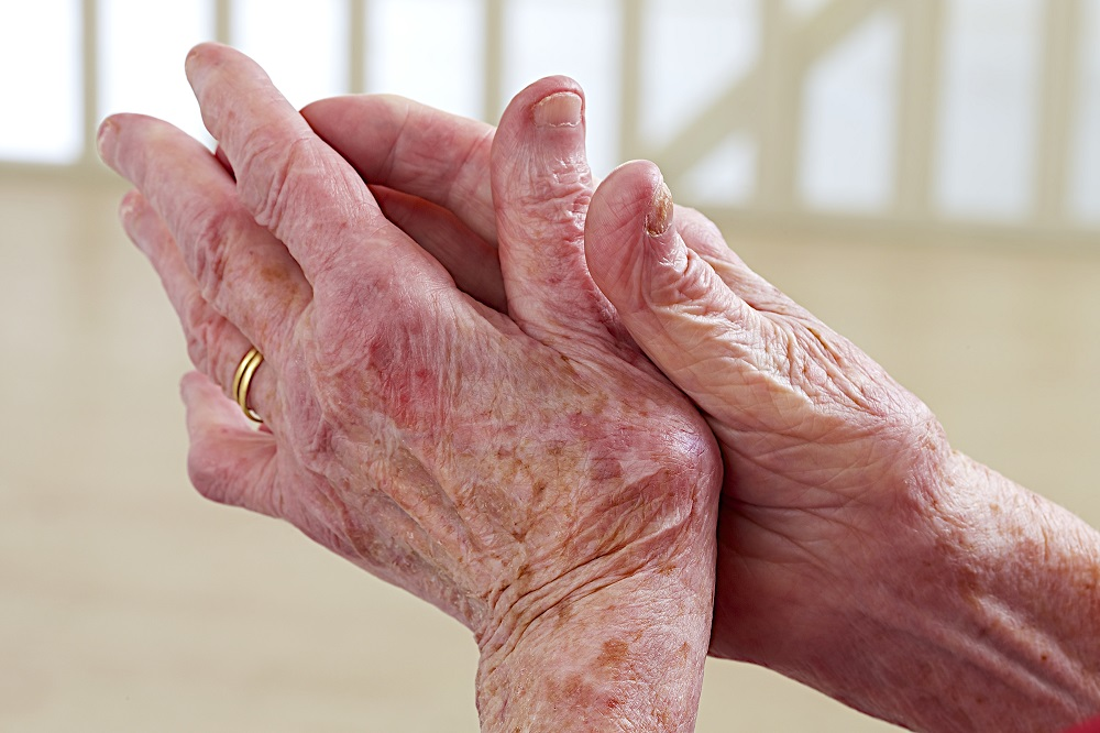 Arthrosis of thumb and finger joints is more common in elderly people