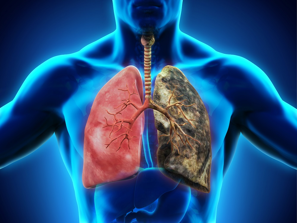Healthy lung and smoker's lung