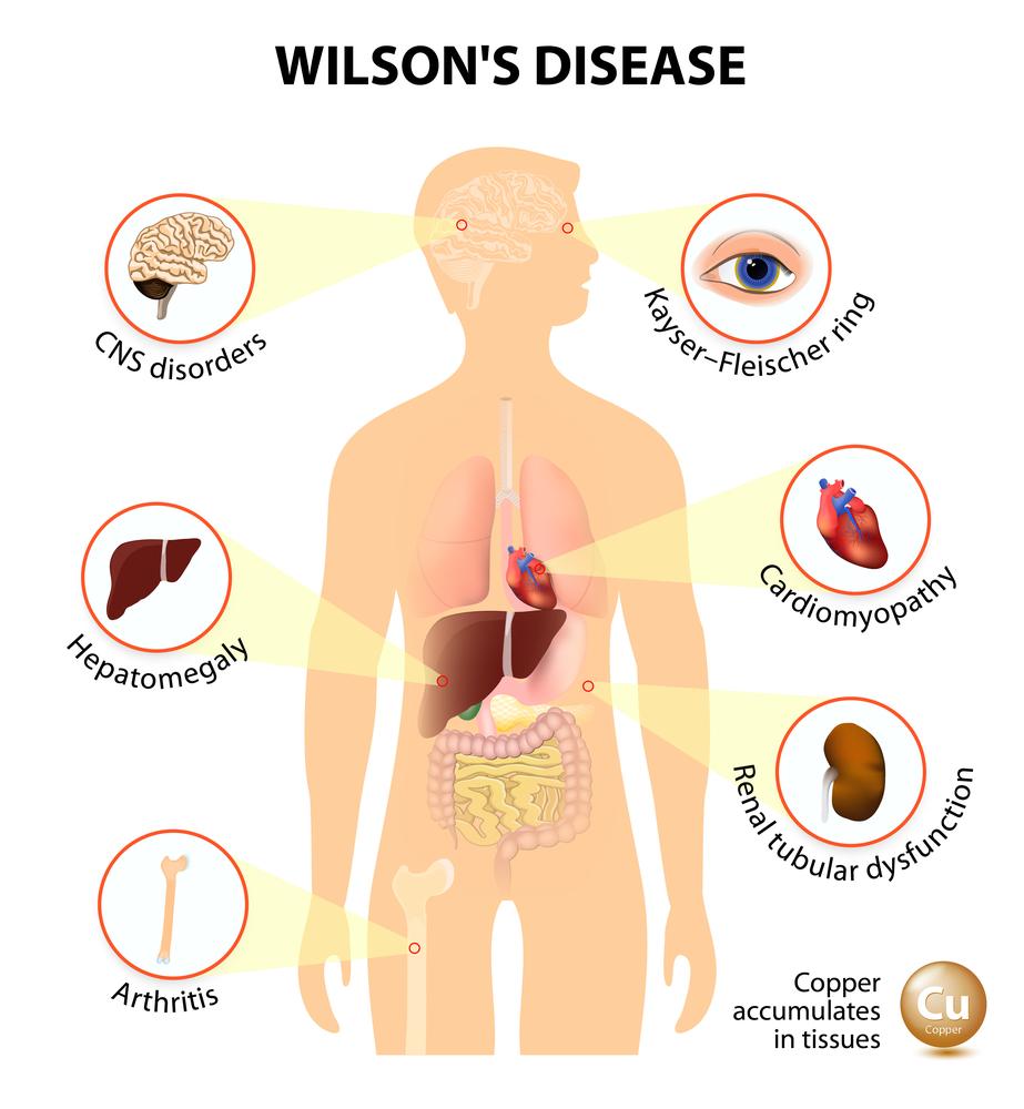 Симптомы болезни Вильсона