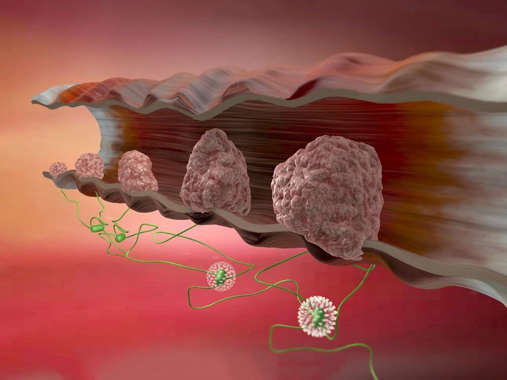 Analkrebs ist eine seltene Krebsart, sie macht nur etwa zwei bis fünf Prozent aller Darmkrebserkrankungen aus.