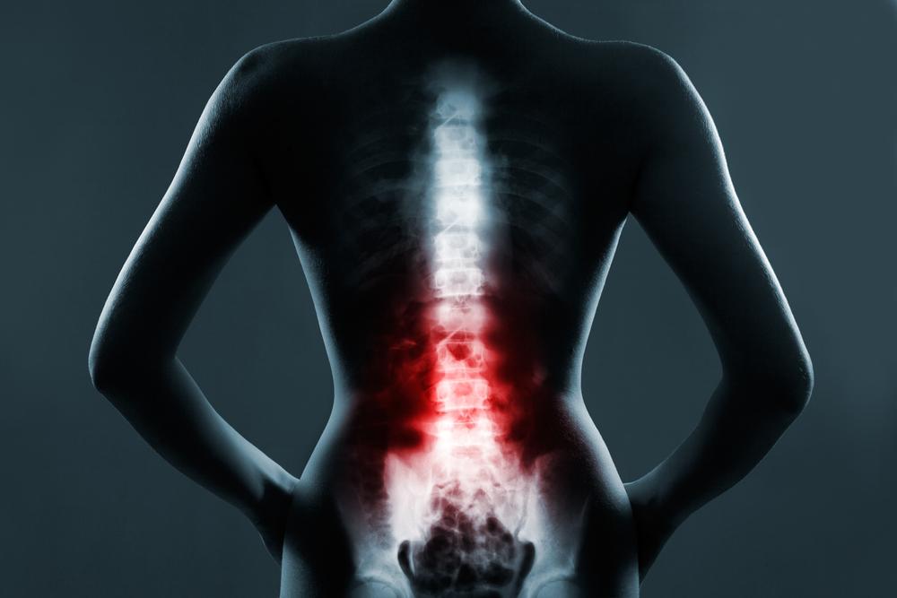 Если перелом произошел в результате действия значительной внешней силы, то в момент травмы пациенты испытывают выраженную боль в спине.