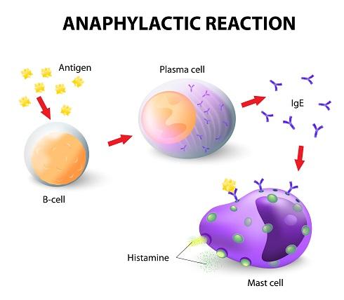 Механизм развития анафилаксии