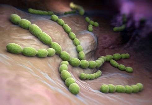 Частая причина перикардита — стрептококковая инфекция