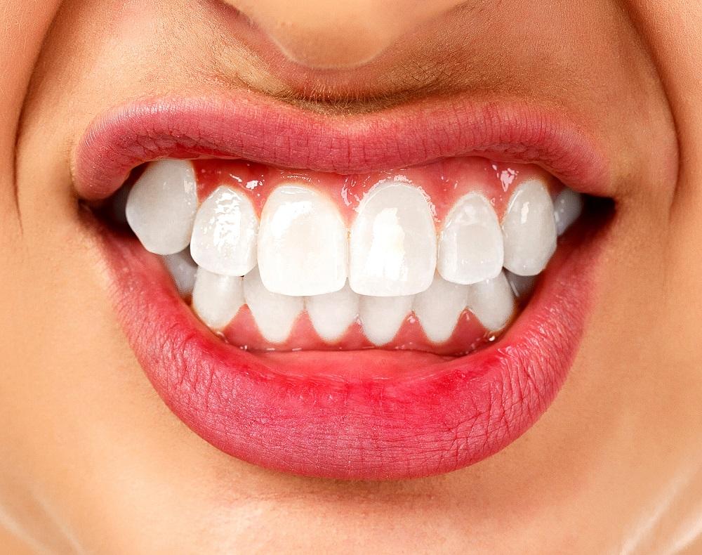 Teeth grinding (bruxism)