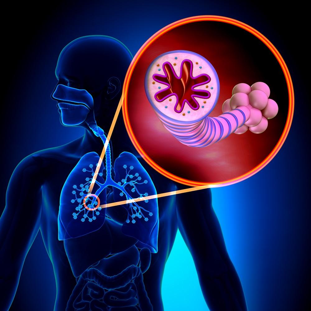 Asthma: eine chronisch entzündliche Krankheit