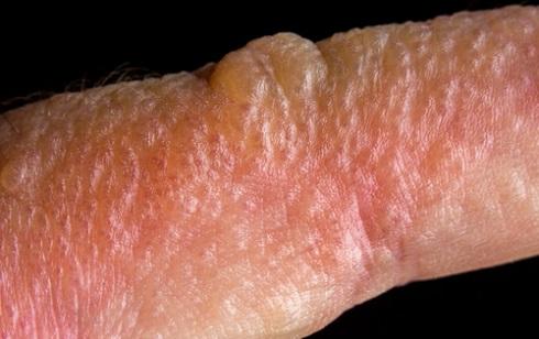 Волдыри аллергического характера