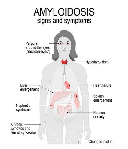 Familial Amyloidosis -
