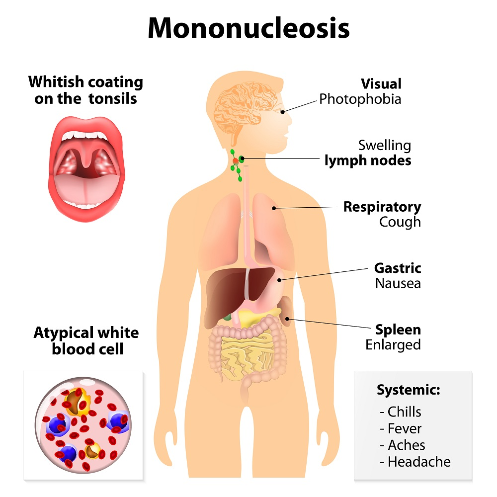 Authoritative How is mono treated in adults