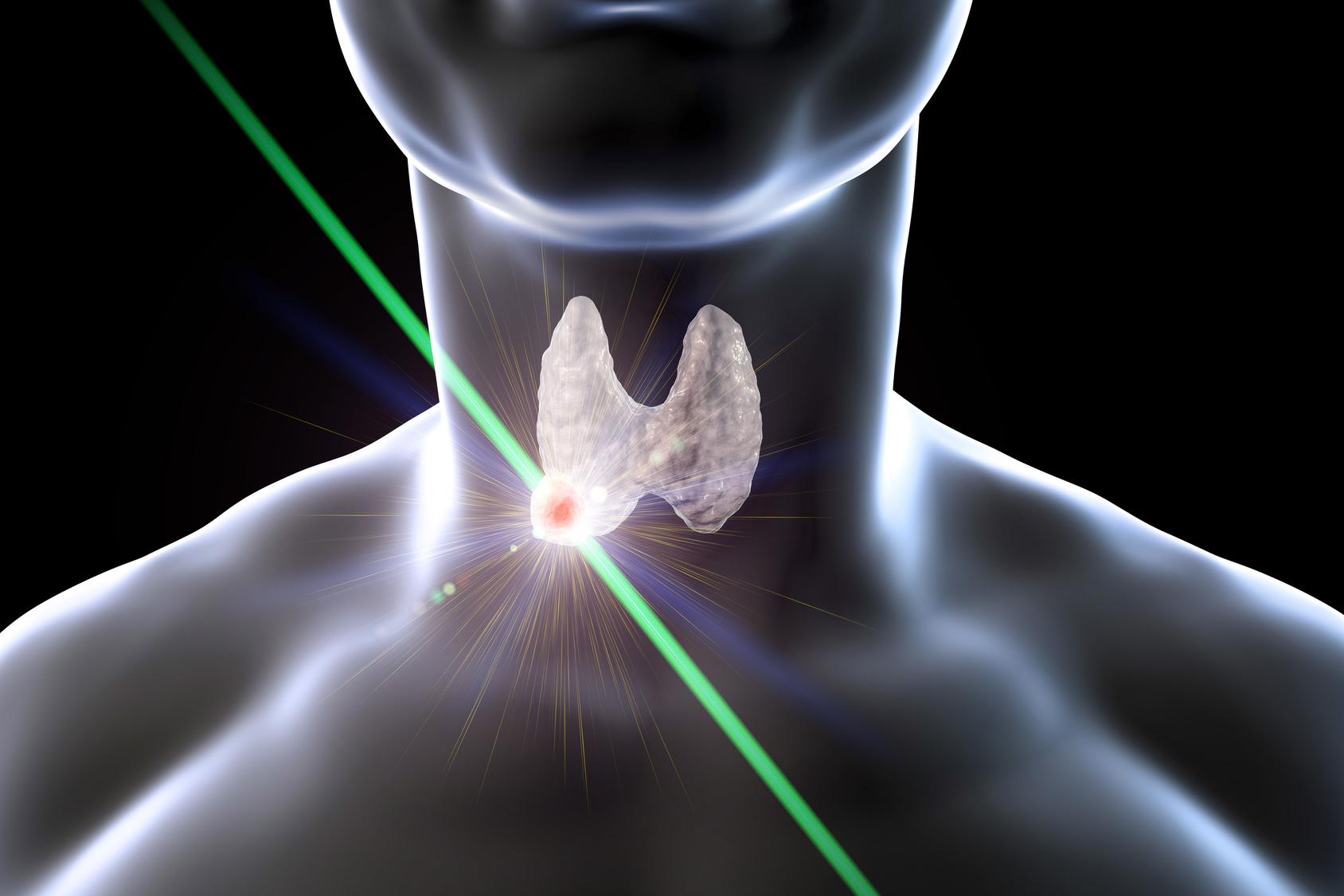 Для термоабляции узлов щитовидной железы может использоваться лазер.