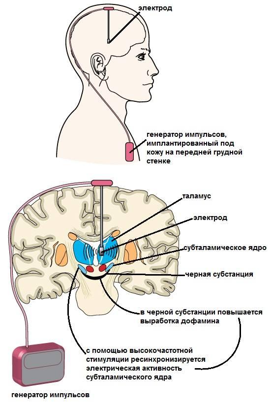 Схема глубокой стимуляции мозга