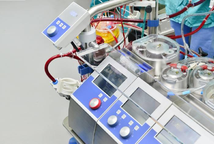 Аппарат сердце-легкие, используемый при трансплантации легких