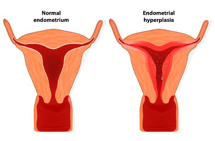 Схематическое изображение эндометриоза (разрастание эндометрия)
