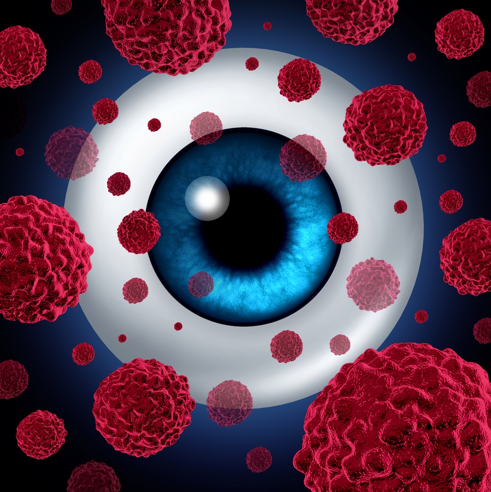 Das Aderhautmelanom ist der häufigste, direkt das Auge betreffende Tumor (primärer Augentumor).