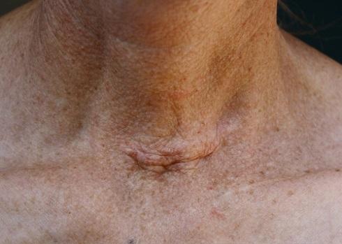 Послеоперационный рубец после удаления щитовидной железы
