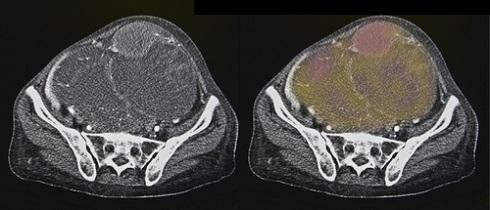 КТ-сканы при раке яичников