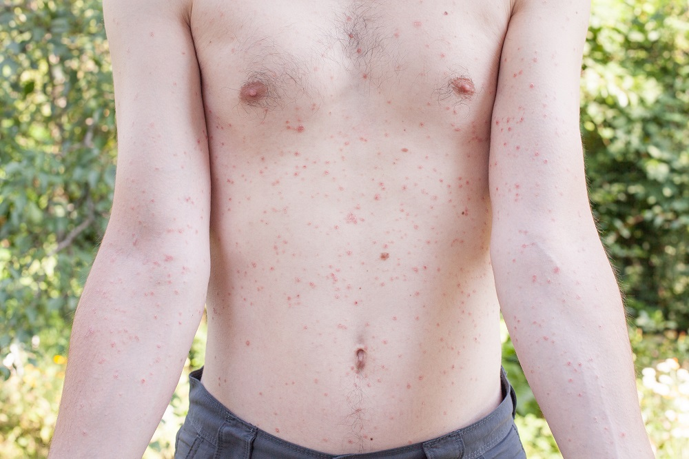 Symptom of streptococcal infection: Scarlet fever with a rash