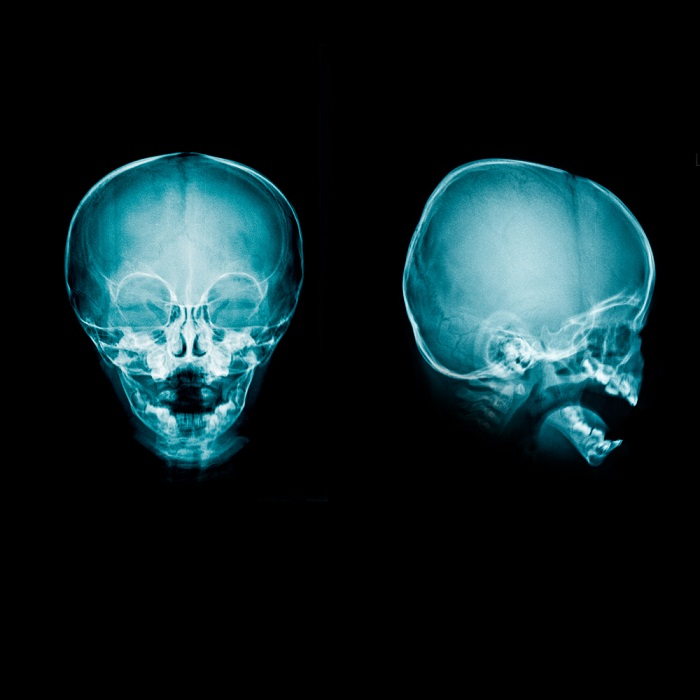 ВПШ – одна из основных операций при гидроцефалии