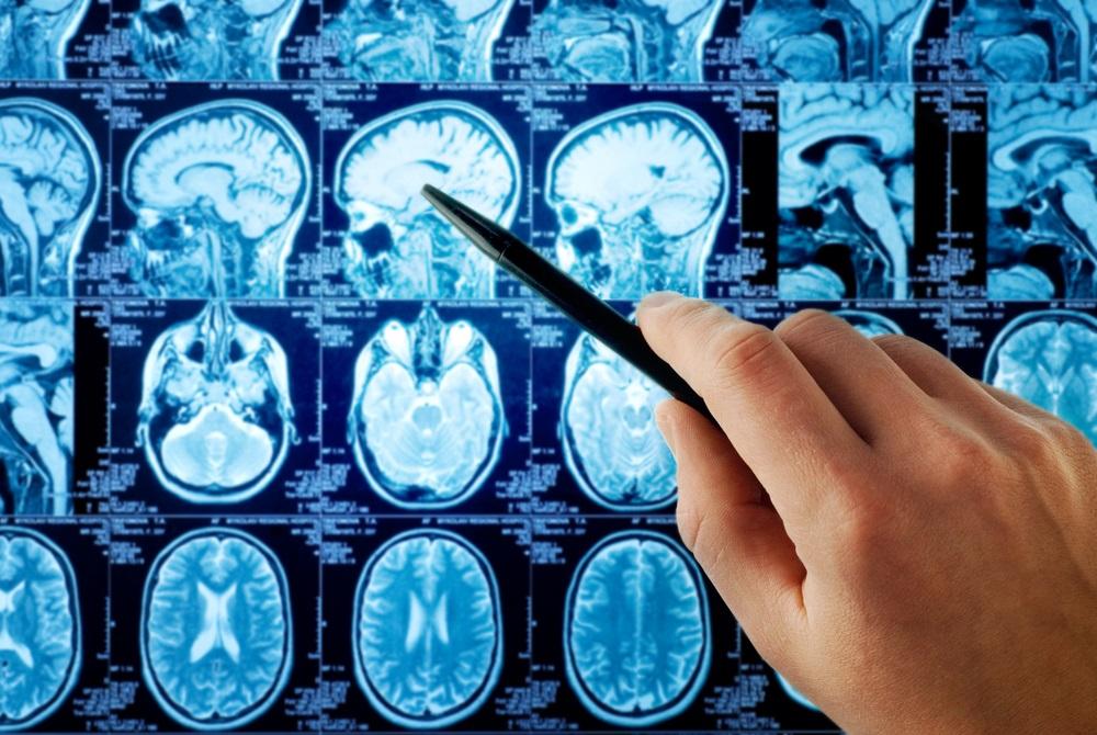 Astrozytome gehören zu den häufigsten Tumoren des Gehirns und treten vorwiegend im mittleren Lebensalter auf.