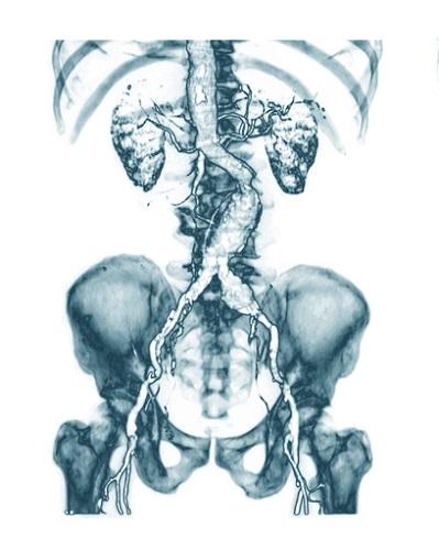 КТ аневризмы брюшной аорты