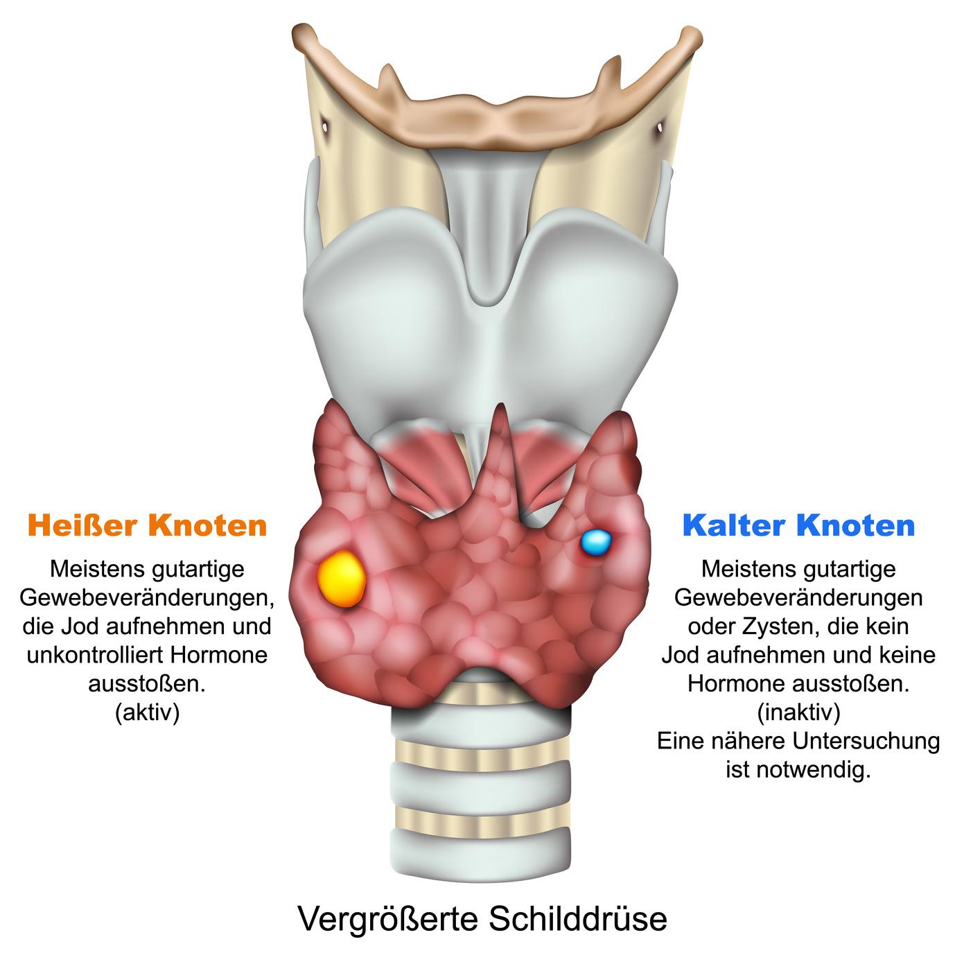 Узлы щитовидной железы могут быть холодными и горячими.