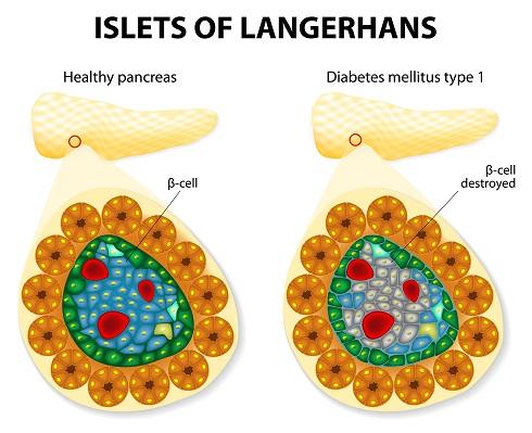 Схема: разрушение β-клеток поджелудочной железы
