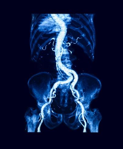 КТ-ангиография: брюшной отдел аорты, артерии малого таза и бёдер