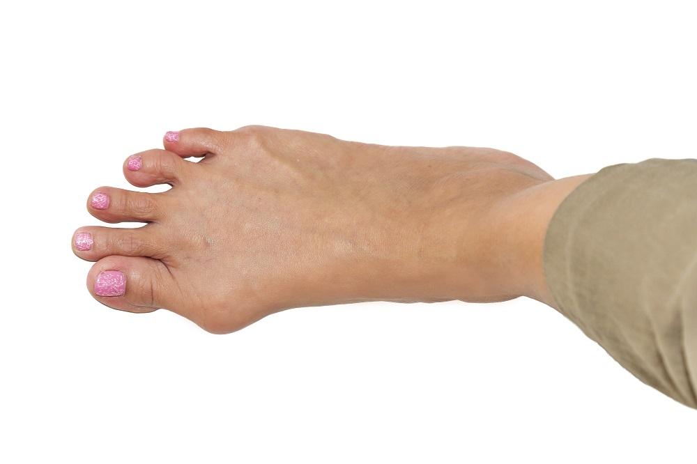 Вальгусная деформация является одной из наиболее распространенных ортопедических проблем у женщин старше 35-40 лет.