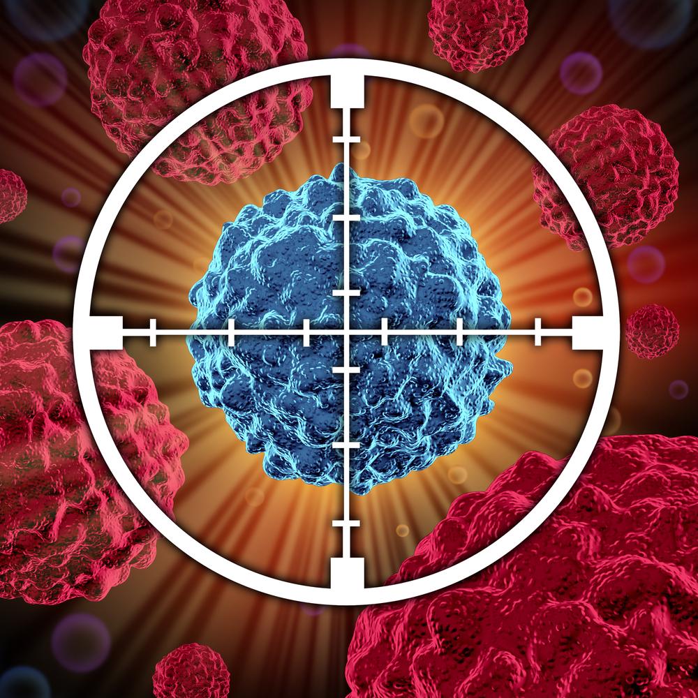Bei der HIFU-Therapie wird der Tumor punktgenau zerstört.