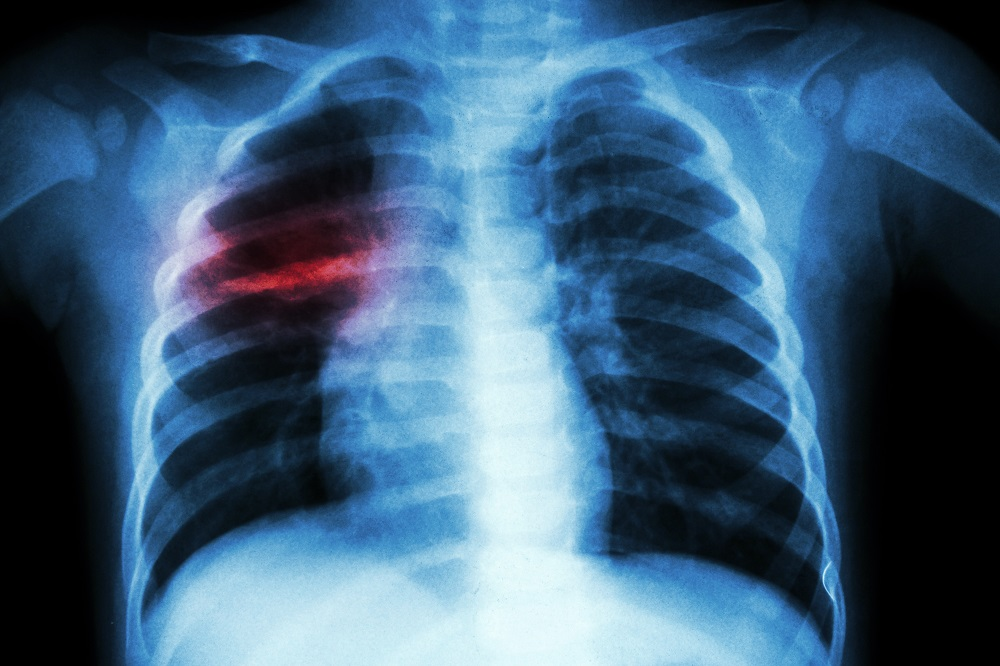 Chest X-ray: Pulmonary tuberculosis