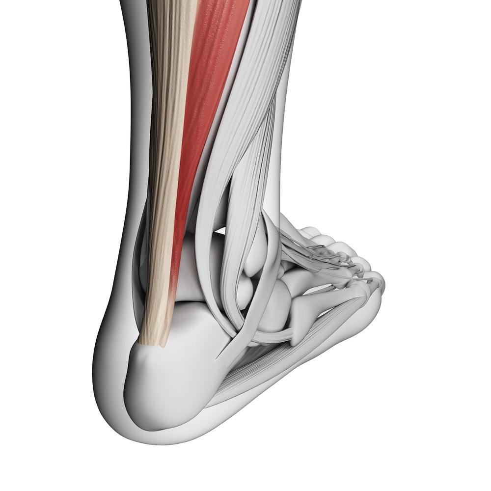 Ursächlich ist meist eine lange Fehl- oder Überbelastung der Achillessehne.