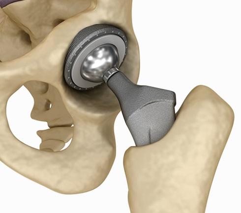 3D-модель протеза тазобедренного сустава