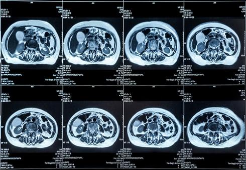 МР-сканы брюшной полости