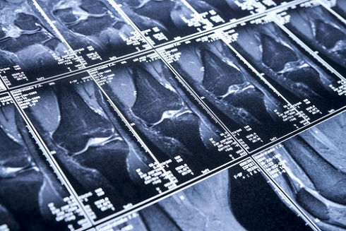 Сканы МРТ коленного сустава