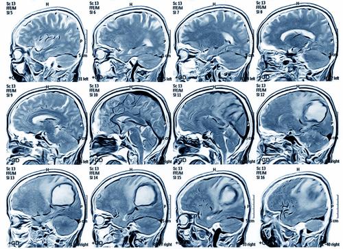 МР-сканы с признаками опухоли головного мозга