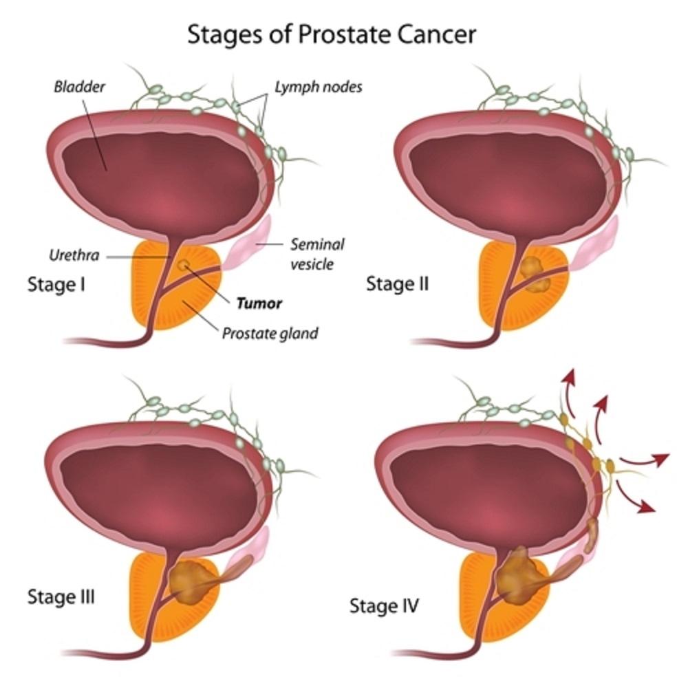 Bei der Behandlung von Prostatakrebskann der HIFUals Primärtherapie sowie bei Rezidivenangewendet werden.
