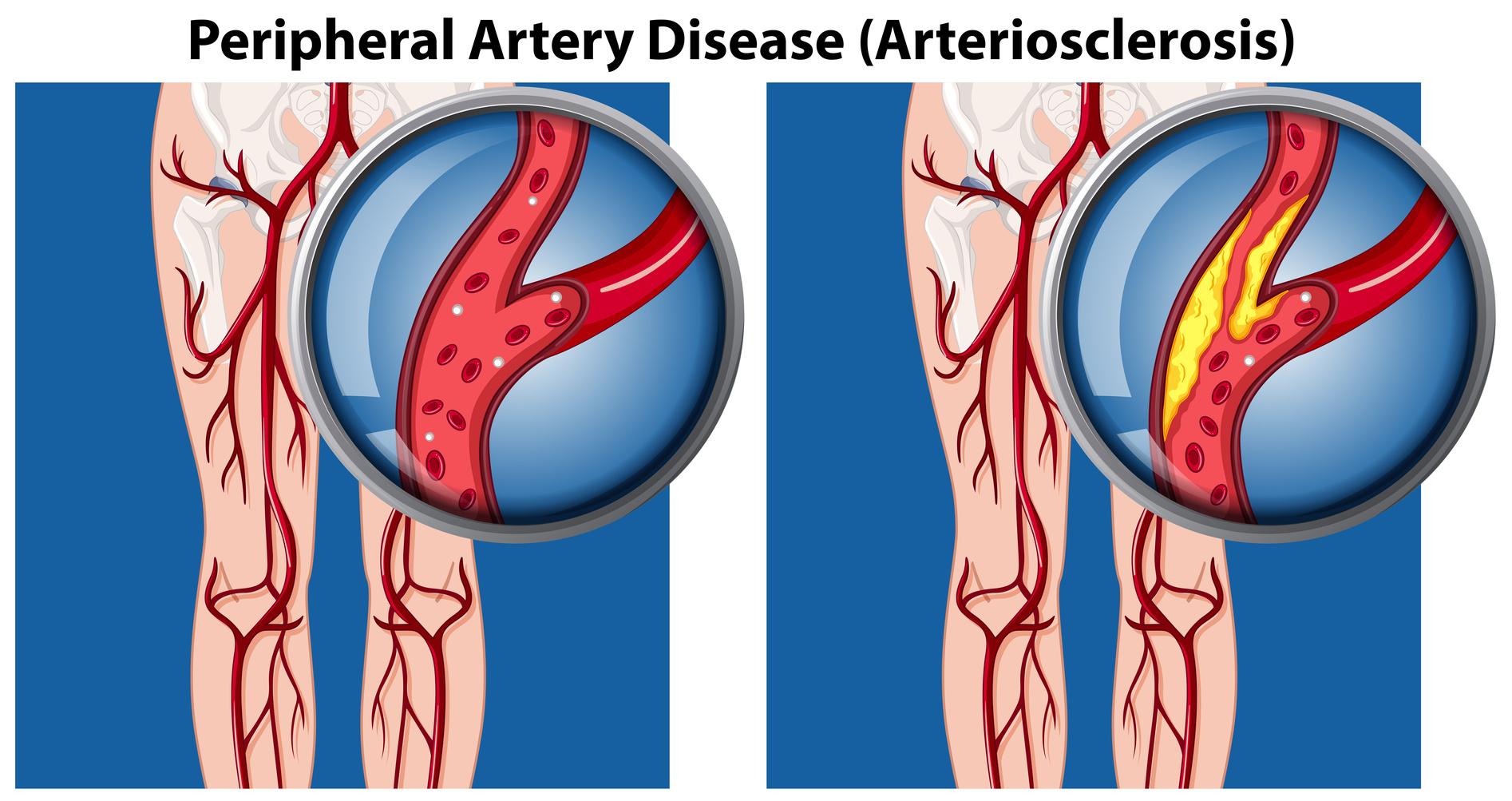 Облитерирующий атеросклероз периферических артерий