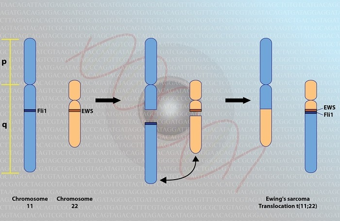 Генетический сбой, приводящий к развитию саркомы Юинга
