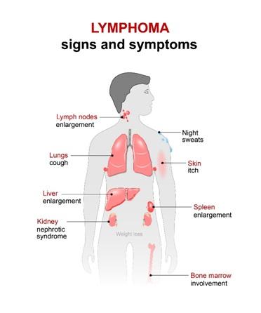 Клиническая симптоматика при лимфоме