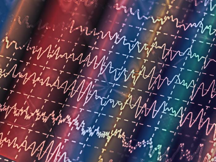 Электрическая активность мозга на ЭЭГ
