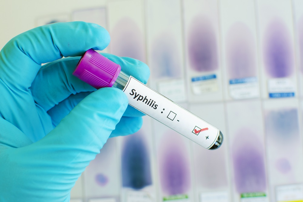 Blood test for syphilis