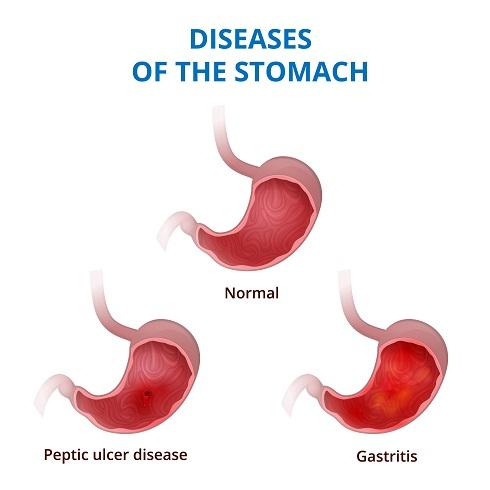 Гастрит и язвенная болезнь — самые распространённые заболевания желудка