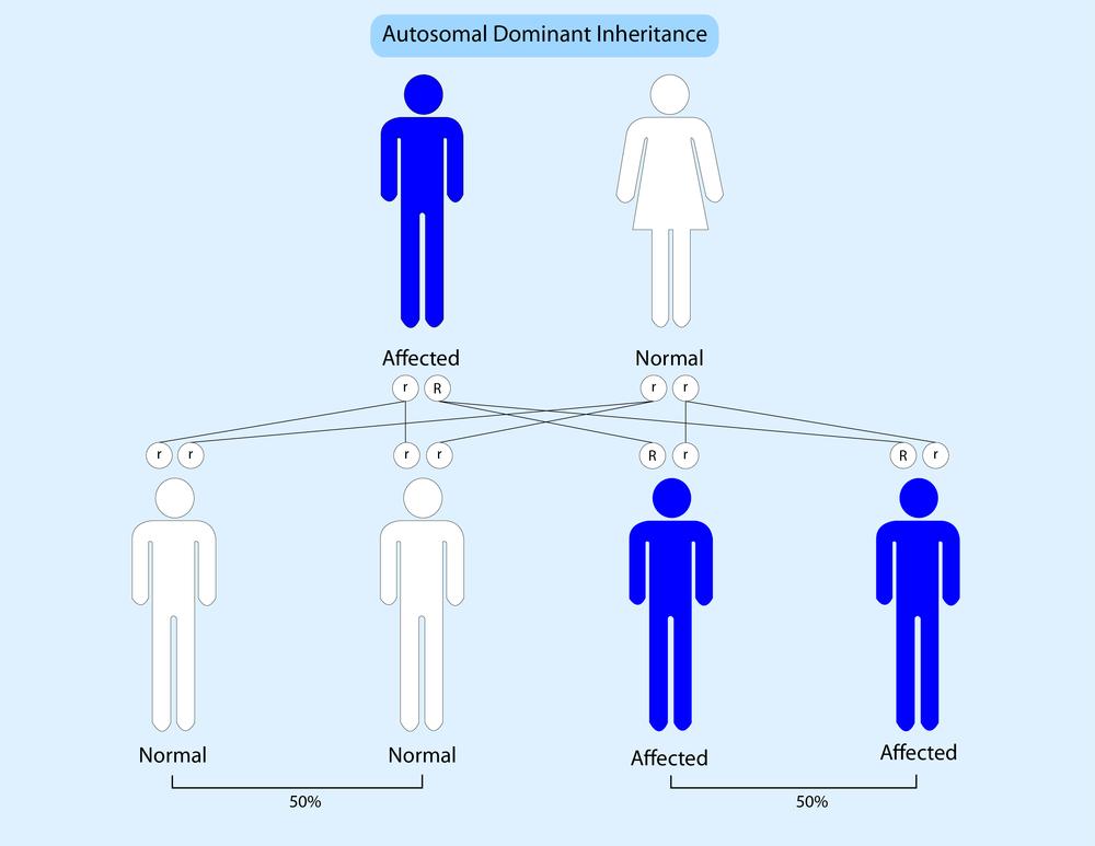 Генетический дефект, вызывающий болезнь, передаётся аутосомно-доминантно.