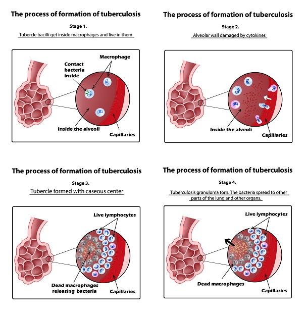 Стадии туберкулёза