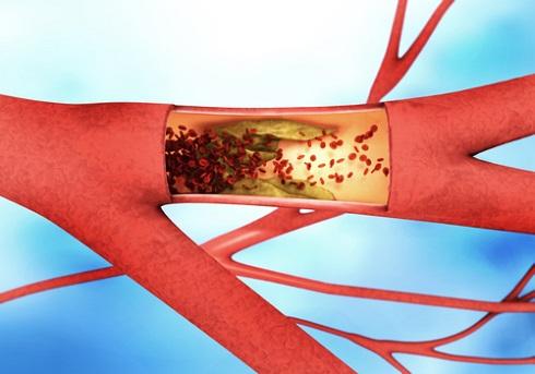 Атеросклеротическое поражение, сужающее просвет артерии