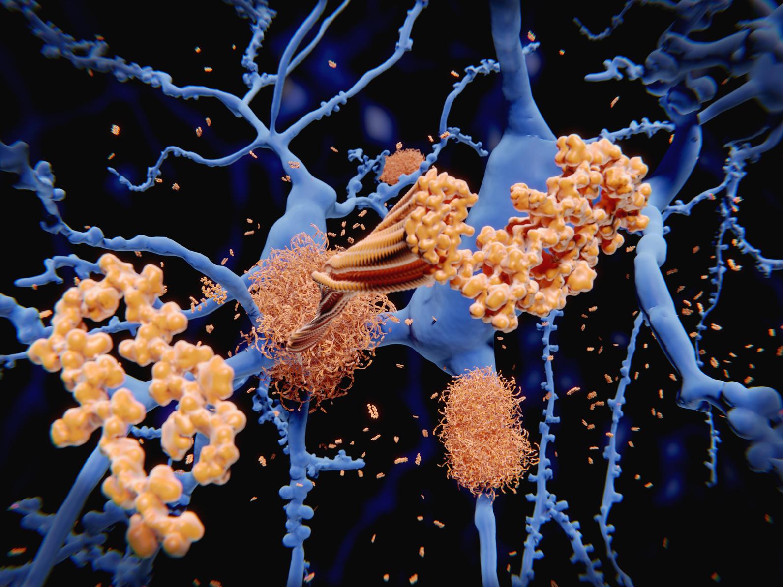 В большинстве случаев развитие болезни Альцгеймера связано с появление амилоидных бляшек