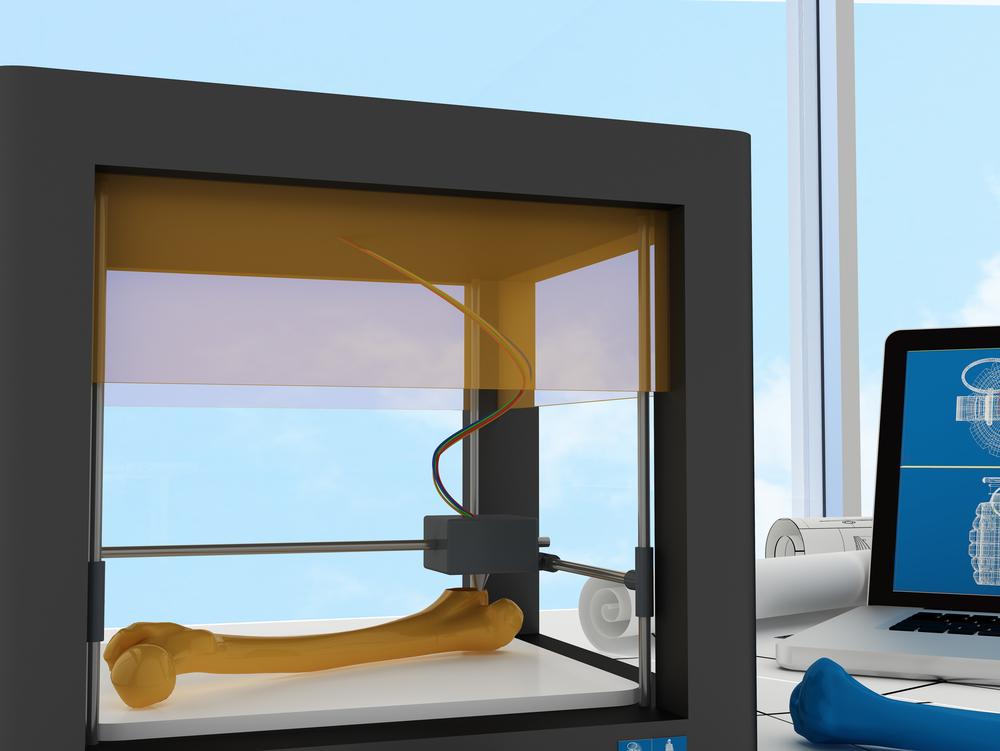3D-Modelle können Gliedmaßen und Organe ersetzen.