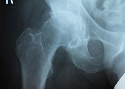 Рентгенограмма: артроз  правого тазобедренного сустава