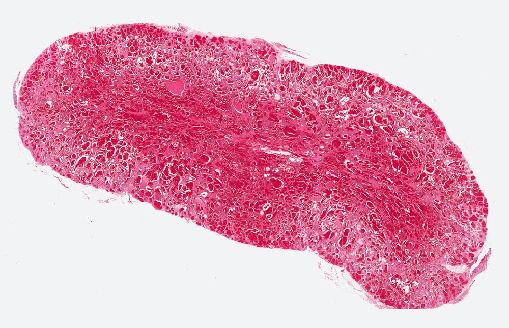 Angiosarkome kommen bei Männern und Frauen etwa gleich häufig vor, vermehrt im Alter.