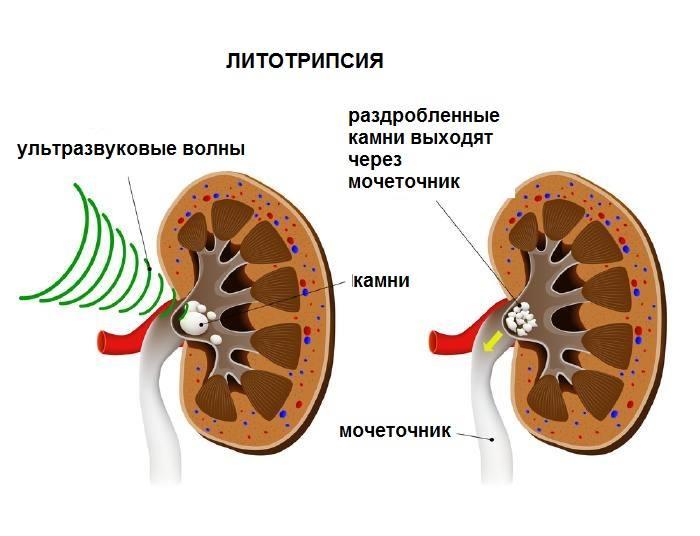 Принцип ударно-волновой литотрипсии